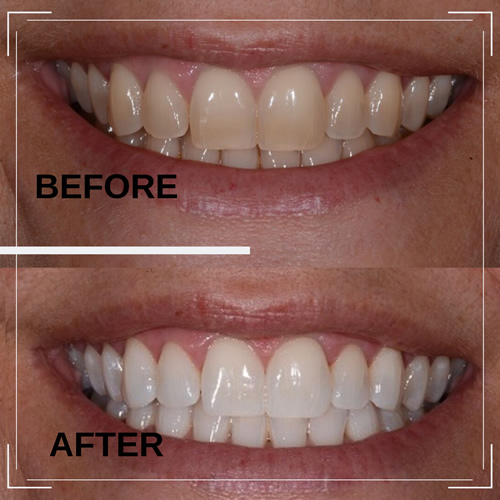 Teeth Whitening before and after example 1