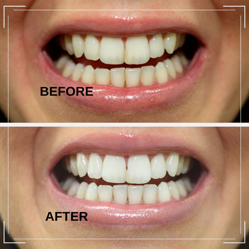 Teeth Whitening before and after example 2