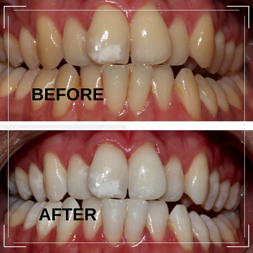 Teeth Whitening before and after example 3