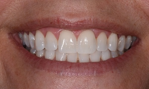 Teeth Whitening example after treatment