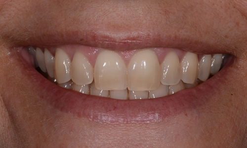 Teeth Whitening example before treatment